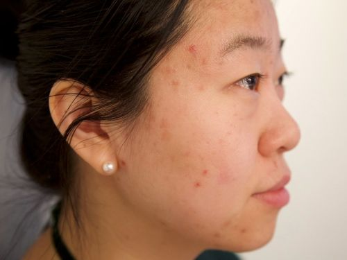 11 surprising things you didn't realize are damaging your skin
