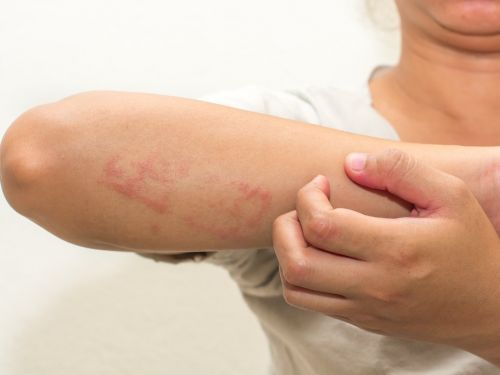 11 tips for treating eczema, according to a dermatologist