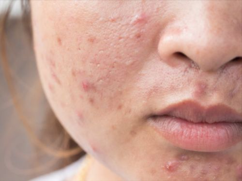 12 things you can do to actually clear your acne, according to experts