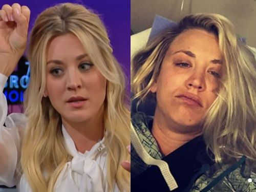 Kaley Cuoco's husband did her hair after she got shoulder surgery just 4 days after their wedding