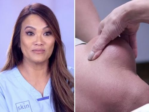 The newest episode of 'Dr Pimple Popper' shows a cyst that looks like it's full of cottage cheese - and the pop is truly jaw-dropping