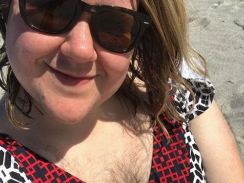A woman has excessive body hair from an ovarian disorder - here's how she learned to embrace it