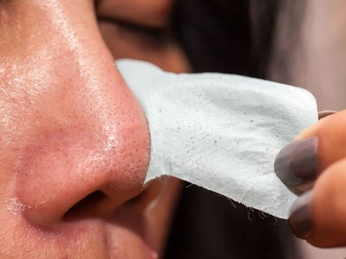 The right way to remove blackheads at home, according to a dermatologist